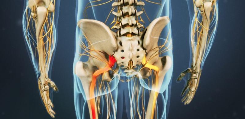 Radiating-pain-sciatic-nerve